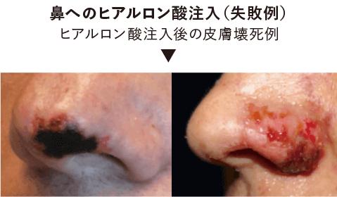 【失敗例】鼻