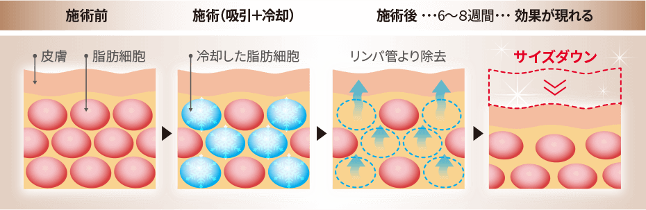 脂肪分解の仕組み