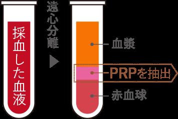 PRP図解