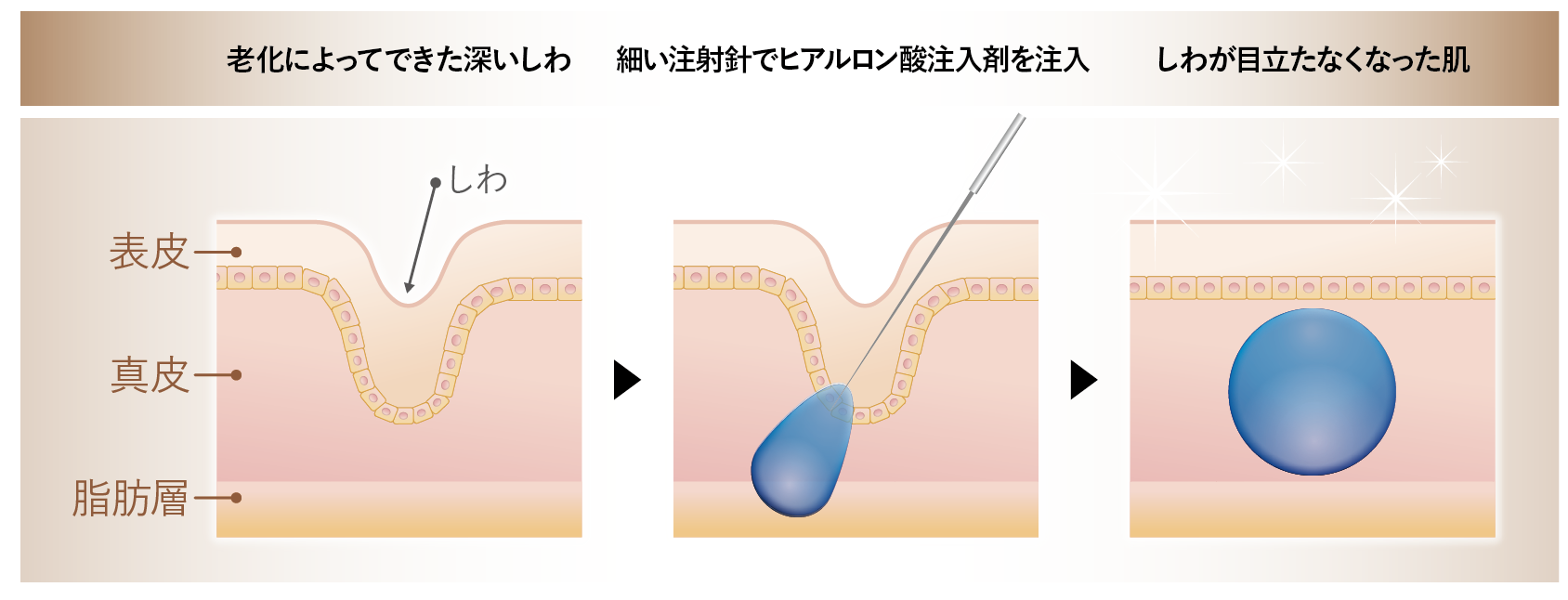 ヒアルロン酸注射イメージ