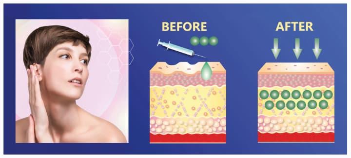 ベビーコラーゲン注射の効果