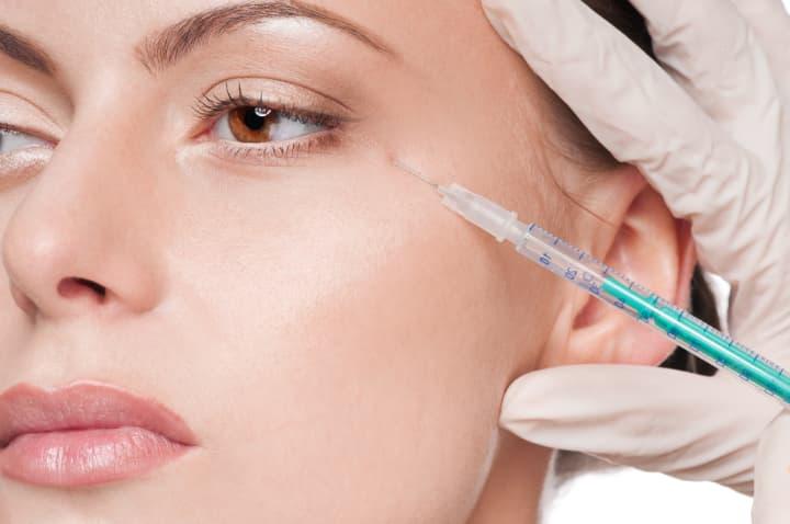 ボトックス注射による眼瞼痙攣治療