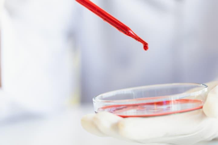幹細胞治療について