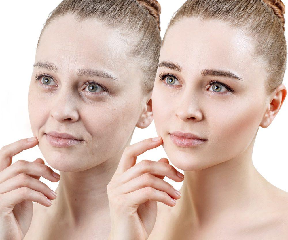 肌の老化の原因と予防法